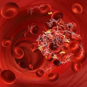Riconoscere, diagnosticare e trattare la Porpora Trombotica Trombocitopenica (PTT)
